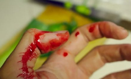 How to Make Fake Wounds without Latex