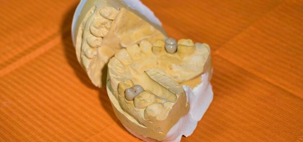 How To Make A Homemade Mold Of Your Teeth